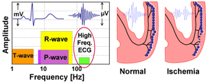 High Frequency QRS - Left: Frequency band of standard ECG components is typically 0.05-100Hz. HFQRS represents changes in the 150-250Hz band (marked in red circle). Right: Depicts the physiological basis of HFQRS