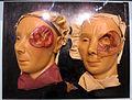Istituto di anatomia patologica, museo, cere, oculistica 04 operazione.JPG