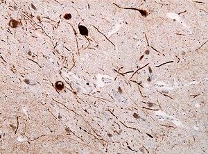 English: Immunohistochemical staining of Lewy ...