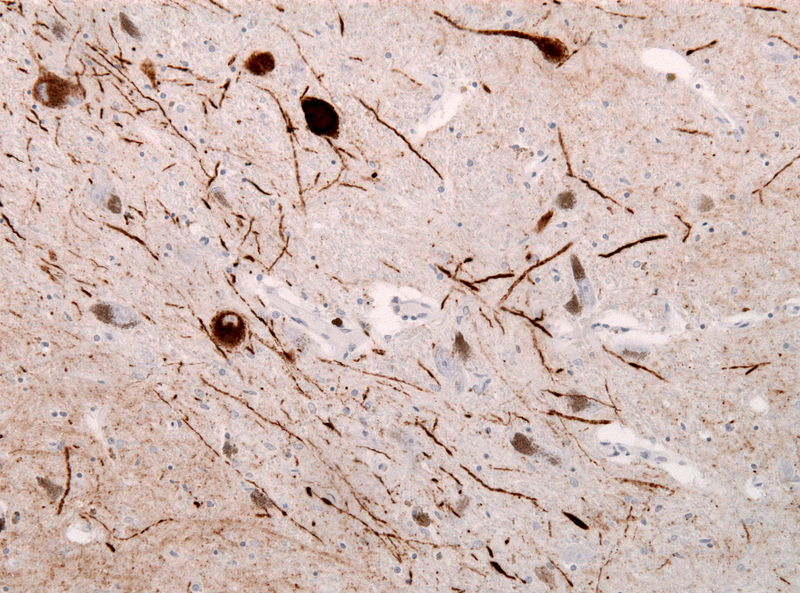 File:Lewy neurites alpha synuclein.jpg
