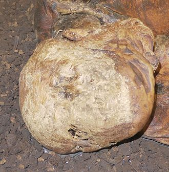 Lindow Man - The top of the Lindow Man's head. The V-shaped cut can be seen at the lower centre.