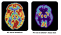 PET scan-normal brain-alzheimers disease brain.PNG