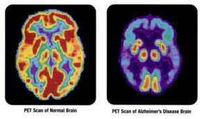 Alzheimer's Disease Neuroimaging Initiative - Figure 3: PET scans showing differences in glucose metabolism in a normal brain on the left and the brain of a patient with AD on the right. Red/yellow corresponds to higher metabolism and blue/purple corresponds to lower metabolism, indicating damage to neurons.