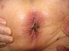 Pictures of womens assholes with hemorrhoids — img 6