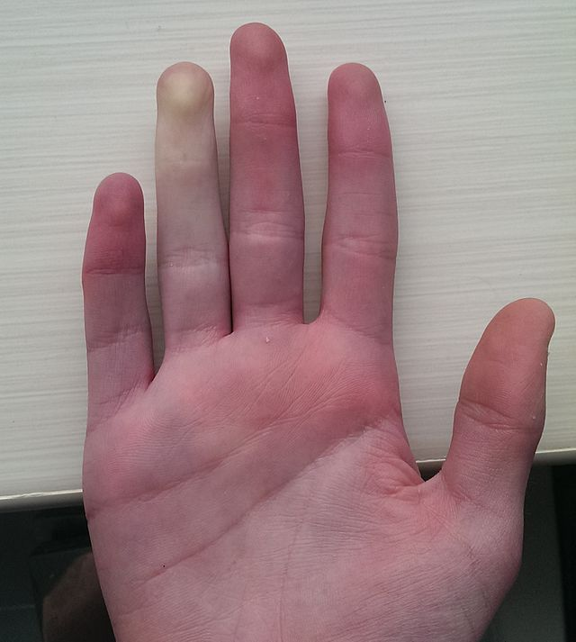 Occurrence of Raynaud's phenomenon in only one finger in the hand.
