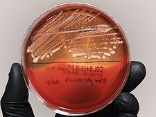 Rhodococcus na krevním agaru