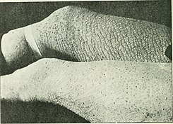 The British journal of dermatology (1888) (14770779252).jpg