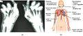 2229 Autoimmune Disorders Rheumatoid Arthritis and Lupus.jpg