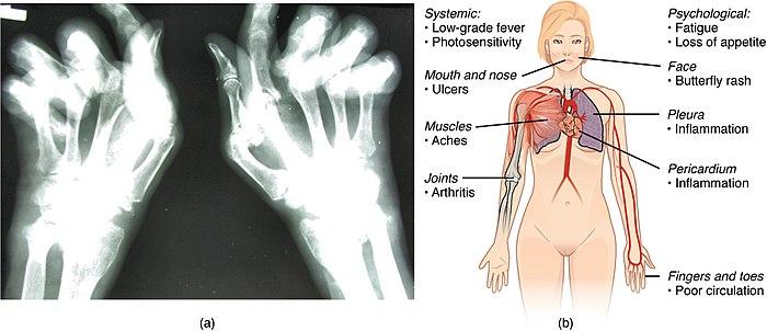 Auoimmune disorders