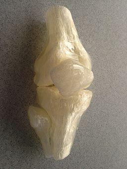 3D printed knee 20151126