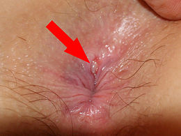 Sex Spray X Relax Anale - Desensibilizzante con Estratti Naturali - Anestetizzante per il Rilassamento dello Sfintere - Anestetico Rilassante Vegan per.