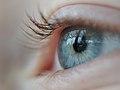 Auge Böhringer A 1.JPG