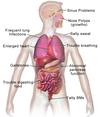 Blausen 0286 CysticFibrosis.png