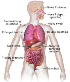 Klinická manifestace cystické fibrózy