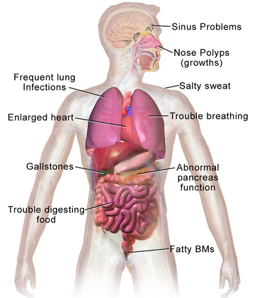 dating someone with tuberculosis This is known because tb bacteria have been found in human remains dating from this period tuberculosis  people with tuberculosis and their contacts are.