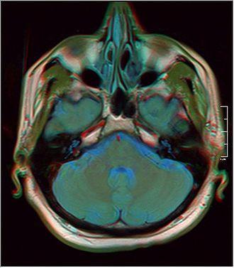 Concha bullosa - Concha bullosa MRI