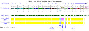 Virtual karyotype - Fig 3. Virtual karyotype log2ratio plot of a chronic lymphocytic leukemia sample using a SNP array. Yellow = copy number of 2 (normal/diploid), aqua = 1 (deletion), pink = 3 (trisomy).