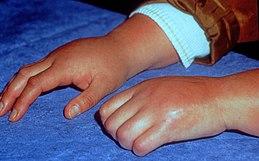 Syndrome douloureux régional complexe — Wikipédia