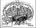 Cerebellar hemangioblastoma.jpg