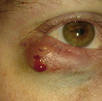 A chalazion immediately after excision