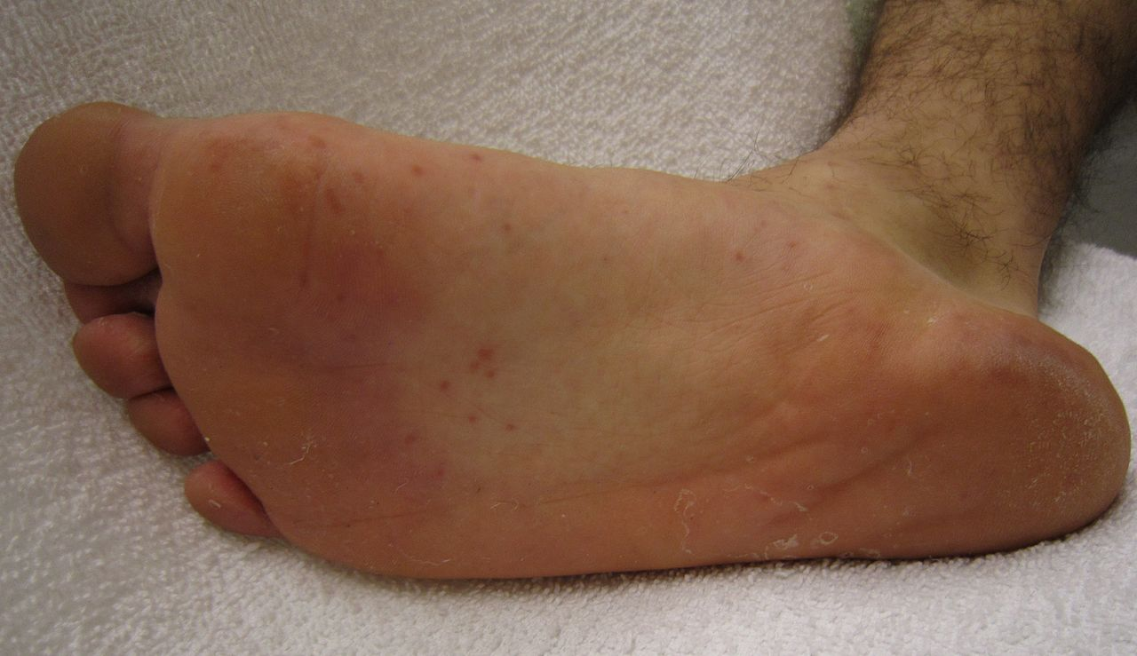 Swollen feet, ankles, and hands edema during pregnancy