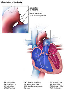 Coarctation of the aorta congenital condition whereby the aorta is narrow, usually in the area where the ductus arteriosus (ligamentum arteriosum after regression) inserts.
