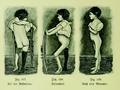 Die Frau als Hausärztin (1911) 247 249 Verkrüppelungen bei Kinderlähmung.png