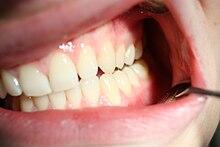 Zähne mit dritten 30 die Die dritten