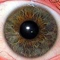 Iris.eye.225px.jpg