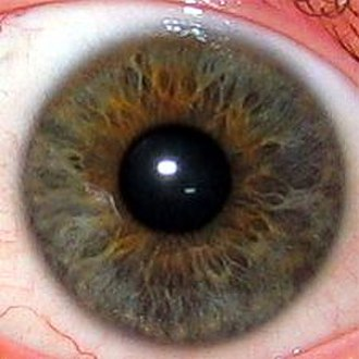 Iridology - The iris is the greenish-yellow area surrounding the transparent pupil (showing as black). The white outer area is the sclera, the central transparent part of which is the cornea.