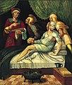 Milagro de San Cosme y San Damián, de Juan Correa de Vivar (Museo de Navarra).jpg