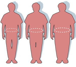 Three silhouettes depicting the outlines of a normal sized (left), overweight (middle), and obese person (right).