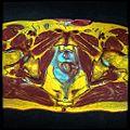 Pelvic MRI T1FSE T2frFSE T2FSfrFSE 17.jpg