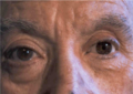 Prótesis ocular O.I. 2f.png