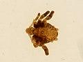 Pthirus pubis (YPM IZ 093652).jpeg