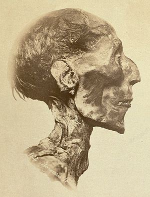 "Aquiline nose - Mummy of the Ancient Egyptian Pharaoh Ramses II with an aquiline, ""hook nose"" and father of Merneptah"