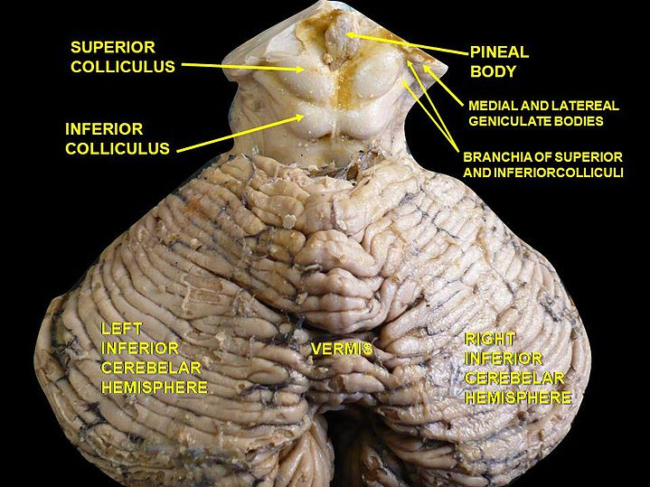 Inferior colliculus - eAnswers