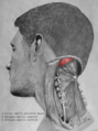 Suboccipital triangle dissection - Obliquus capitis superior muscle.png