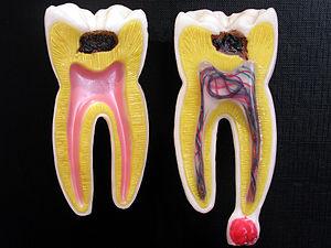Caria - cauzele apariției cariei dentare și de ce trebuie tratată cât mai devreme