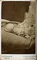 A child with an encephalocele lying on a bed. Photograph, c. Wellcome V0029656.jpg