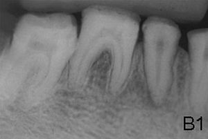 X-ray showing lack of enamel opacity and a pat...
