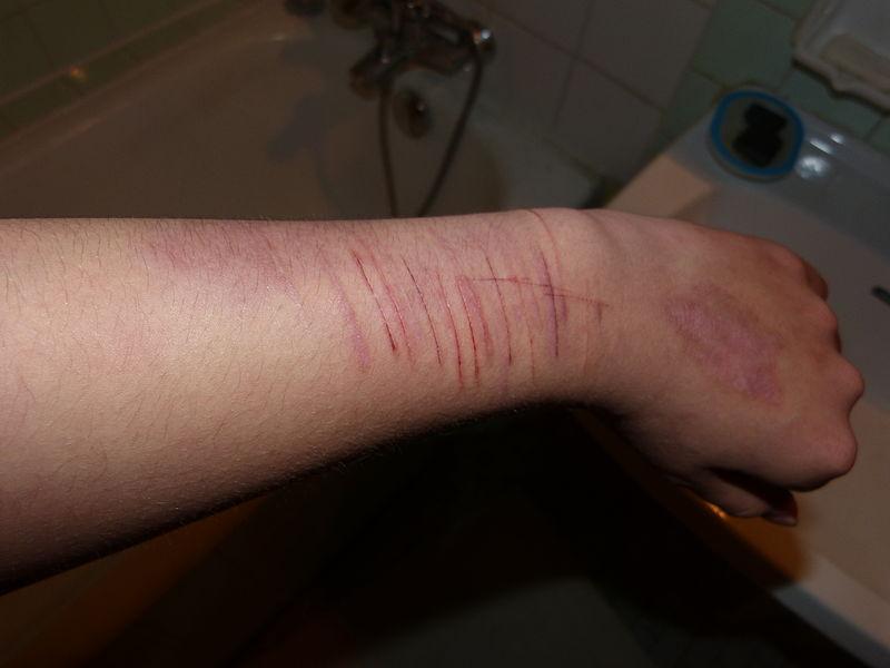 File:Auto-Mutilation.JPG