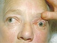 Bilateral exophthalmos.jpg