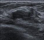 Breast US Fibroadenoma 0531092046875 Nevit.jpg