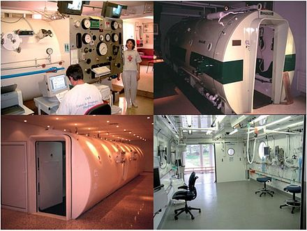 Collage of 4 images of multiplace hyperbaric chambers