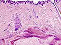 Calcifying epithelioma (1).jpg