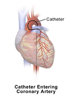 Catheter Entering Coronary Artery