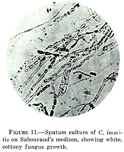 Coccidioides immitis on Sabouraud's medium.jpg