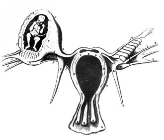 Regnier de Graaf - Ectopic pregnancy by Reinier de Graaf, copied, as he acknowledged, from an earlier French publication by Vassal