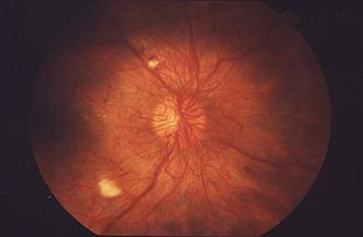 Cotton wool spots - An ophthalmoscopic view of the retina showing advanced signs of diabetic retinopathy including two pale cotton wool spots.